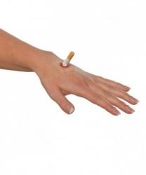Рана  Сигаретный ожог  - Шрамы, раны, арт: 5786