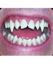 Верхняя челюсть вампира
