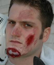 Латексная рана Разбитый подбородок - Шрамы, раны, арт: 6514