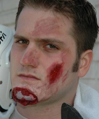 Латексная рана Разбитый подбородок, латекс (Германия)